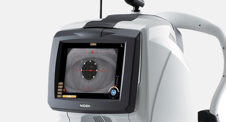 Scanner-TCO-eye-exam